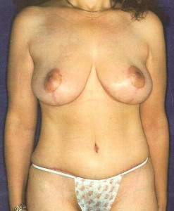 After-Breast Lift/Reduction and Tummy Tuck