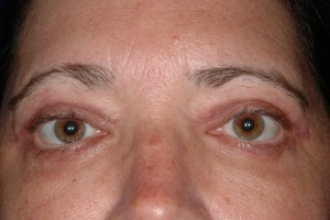 After-Eyelid Tuck