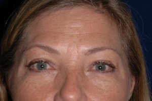 Before-Eyelid Tuck