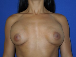 Before-This patient had breast augmentation performed by another board certified plastic surgeon. The before photo shows severe deformity and wide cleavage. The after photo shows corrective surgery performed by Dr. Perez. Remember, not all board certified plastic surgeons are the same. Our office sees many patients requesting corrective surgery.