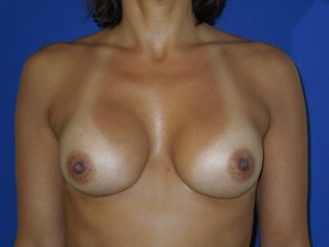 After-This patient had her original surgery outside the U.S. She had hard breast implant capsules and a wide cleavage. The after photo shows correction by Dr. Perez with removal of the capsule, implant exchange, and narrowing of the cleavage. The breasts are now much softer as well.