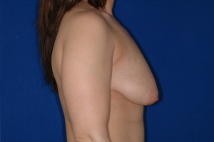 Before-The Anchor Breast Lift