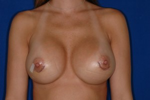 After-Corrective Surgery (original surgery done by another surgeon) Breast implant exchange, capsule repair. Move right implant up, left implant down, and both implants towards cleavage. Whew! 3 days after.