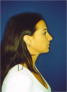 After-Nose Reshaping