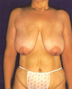 Before-Breast Lift/Reduction and Tummy Tuck