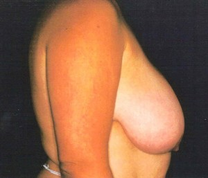 Before-Breast Lift/Reduction