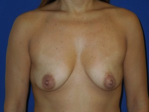 Before-Limited-scar, periareolar (Benelli) breast lift with breast augmentation. This patient was able to avoid the common \