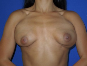 Before-This patient had breast augmentation performed by another board certified plastic surgeon. The before photo shows severe deformity, accentuated by contracting her chest muscles, and wide cleavage. The after photo shows corrective surgery performed by Dr. Perez. Note the improvement even with muscle contraction. Remember, not all board certified plastic surgeons are the same. Our office sees many patients requesting corrective surgery.
