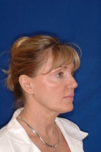 Before-Ultrasonic Necklift only