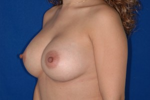 After-Breast Augmentation