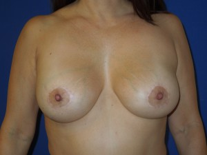 After-This patient had hard, high breast implant capsules following surgery outside the U.S. The patient had corrective surgery by Dr. Perez including a capsule release, implant exchange, breast lift and cleavage improvement.