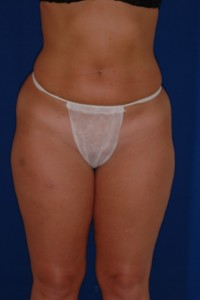 Before-Ultrasonic Liposuction of Tummy and thighs