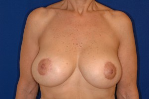 After-Limited-scar, periareolar (Benelli) breast lift with breast implant exchange. This 70-year old patient was able to avoid the common \