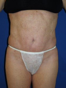 After-This patient had a poor result, with severe skin rippling, from traditional liposuction performed by another doctor. The after photo shows corrective secondary ultrasonic lipoplasty and mini-tummy tuck performed by Dr. Perez.