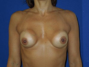 Before-This patient had her original surgery outside the U.S. She had hard breast implant capsules and a wide cleavage. The after photo shows correction by Dr. Perez with removal of the capsule, implant exchange, and narrowing of the cleavage. The breasts are now much softer as well.