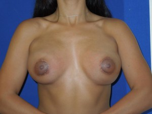 After-This patient had breast augmentation performed by another board certified plastic surgeon. The before photo shows severe deformity, accentuated by contracting her chest muscles, and wide cleavage. The after photo shows corrective surgery performed by Dr. Perez. Note the improvement even with muscle contraction. Remember, not all board certified plastic surgeons are the same. Our office sees many patients requesting corrective surgery.