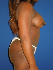 After-Breast Implants with Limited Scar Breast Lift and Tummy Tuck