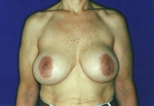 Before-Limited-scar, periareolar (Benelli) breast lift with breast implant exchange. This 70-year old patient was able to avoid the common \
