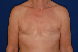 Before-Breast Reconstruction following mastectomy for cancer
