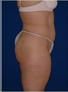 After-Tummy tuck and Ultrasonic Lipoplasty (UAL) of the flanks and back.