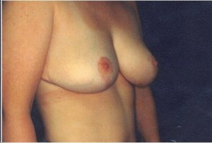 After-Anchor Breast Lift