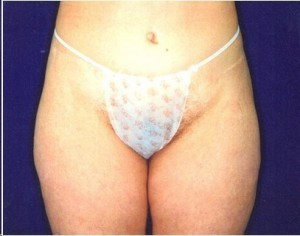 After-Extended Tummy Tuck