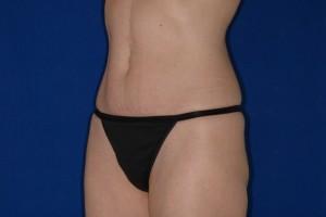 After-Mini-Tummy Tuck