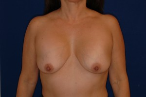 Before-This patient had hard, high breast implant capsules following surgery outside the U.S. The patient had corrective surgery by Dr. Perez including a capsule release, implant exchange, breast lift and cleavage improvement.