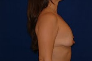 Before-Limited-scar, periareolar (Benelli) breast lift with breast implant exchange. This patient was able to avoid the common \