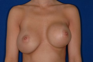 Before-Corrective Surgery (original surgery done by another surgeon) Breast implant exchange, capsule repair. Move right implant up, left implant down, and both implants towards cleavage. Whew! 3 days after.
