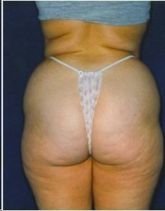 Before-Ultrasonic Lipoplasty of the flanks, back and thighs