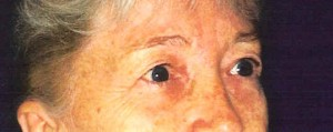 Before-Upper and Lower Eyelids