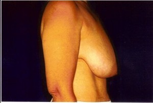 Before-Anchor Breast Lift
