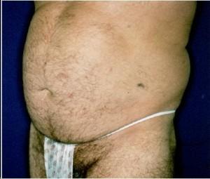 Before-Ultrasonic Lipoplasty (UAL) of the flanks and abdomen.