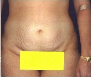 Before-Extended Tummy Tuck