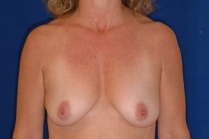 Before-Breast Augmentation