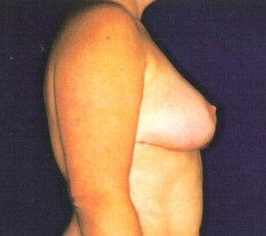 After-Breast Lift/Reduction