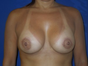 After-Limited-scar, periareolar (Benelli) breast lift with breast augmentation. This patient was able to avoid the common \