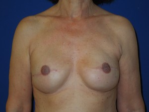After-Breast Reconstruction following mastectomy for cancer