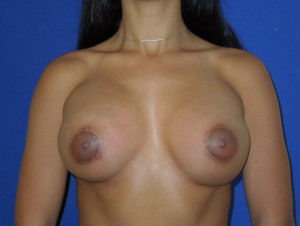After-This patient had breast augmentation performed by another board certified plastic surgeon. The before photo shows severe deformity and wide cleavage. The after photo shows corrective surgery performed by Dr. Perez. Remember, not all board certified plastic surgeons are the same. Our office sees many patients requesting corrective surgery.
