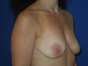 Before-A limited scar breast lift using the peri-areolar technique with implants. This patient was spared the common anchor scar breast lift.