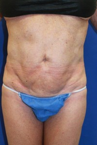 Before-This patient had a poor result, with severe skin rippling, from traditional liposuction performed by another doctor. The after photo shows corrective secondary ultrasonic lipoplasty and mini-tummy tuck performed by Dr. Perez.