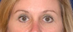 After-Upper and Lower Eyelids