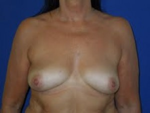 Before-Limited-scar, periareolar (Benelli) breast lift with breast implants. This patient was able to avoid the common \