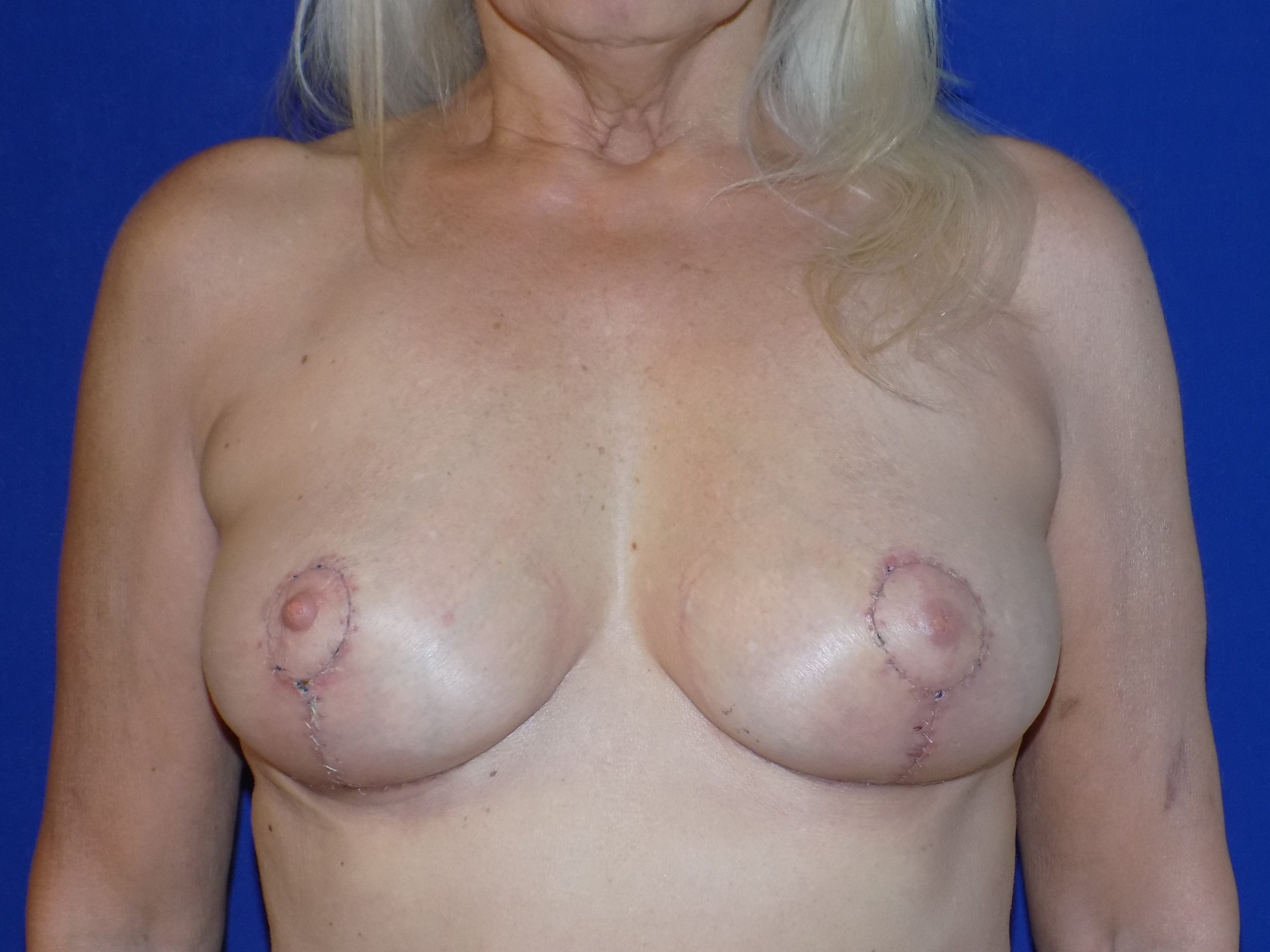After-This patient no longer wanter breast implants. Breast Implant removal and breast lift by Dr. Perez.