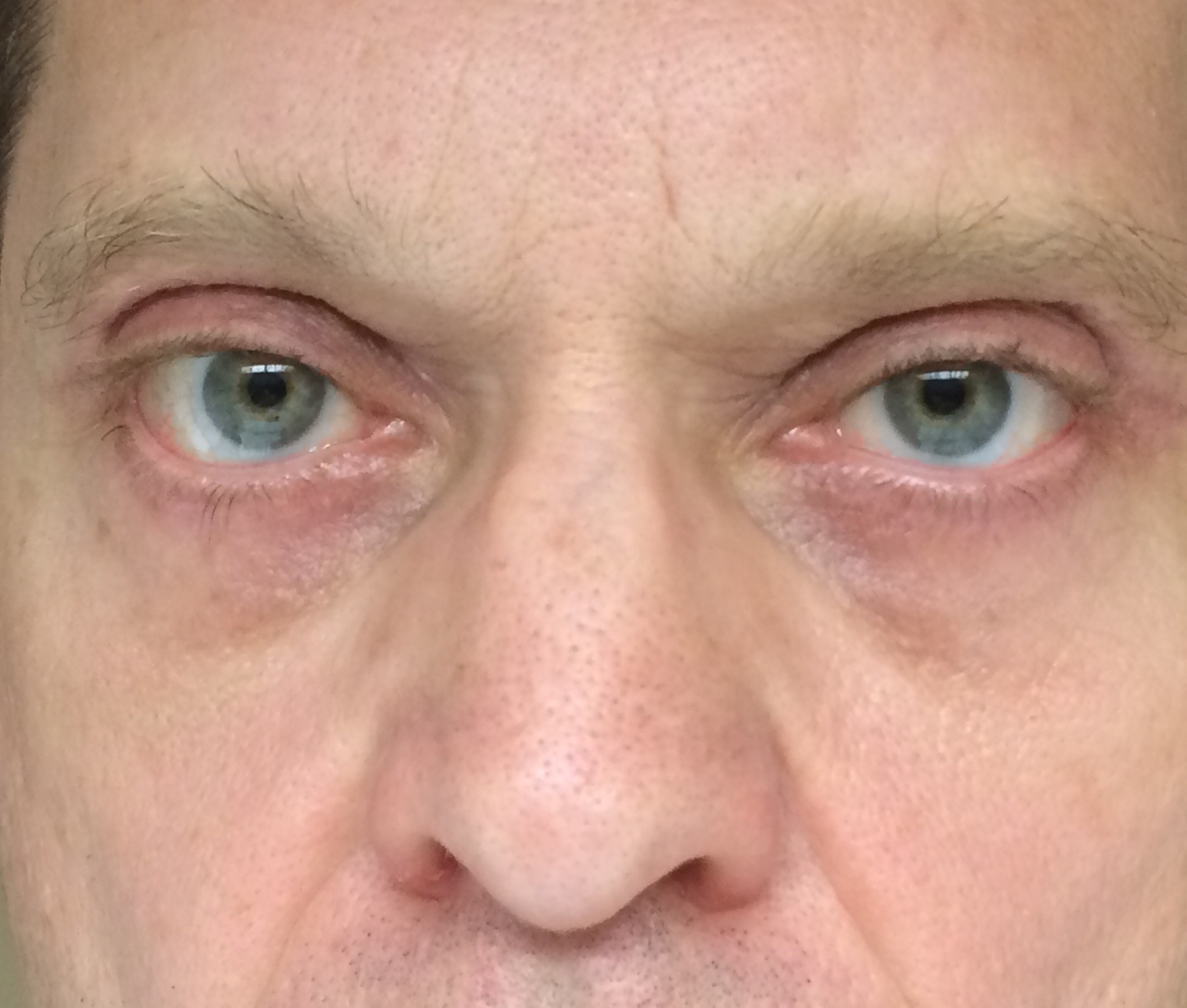 After-Blepharoplasty