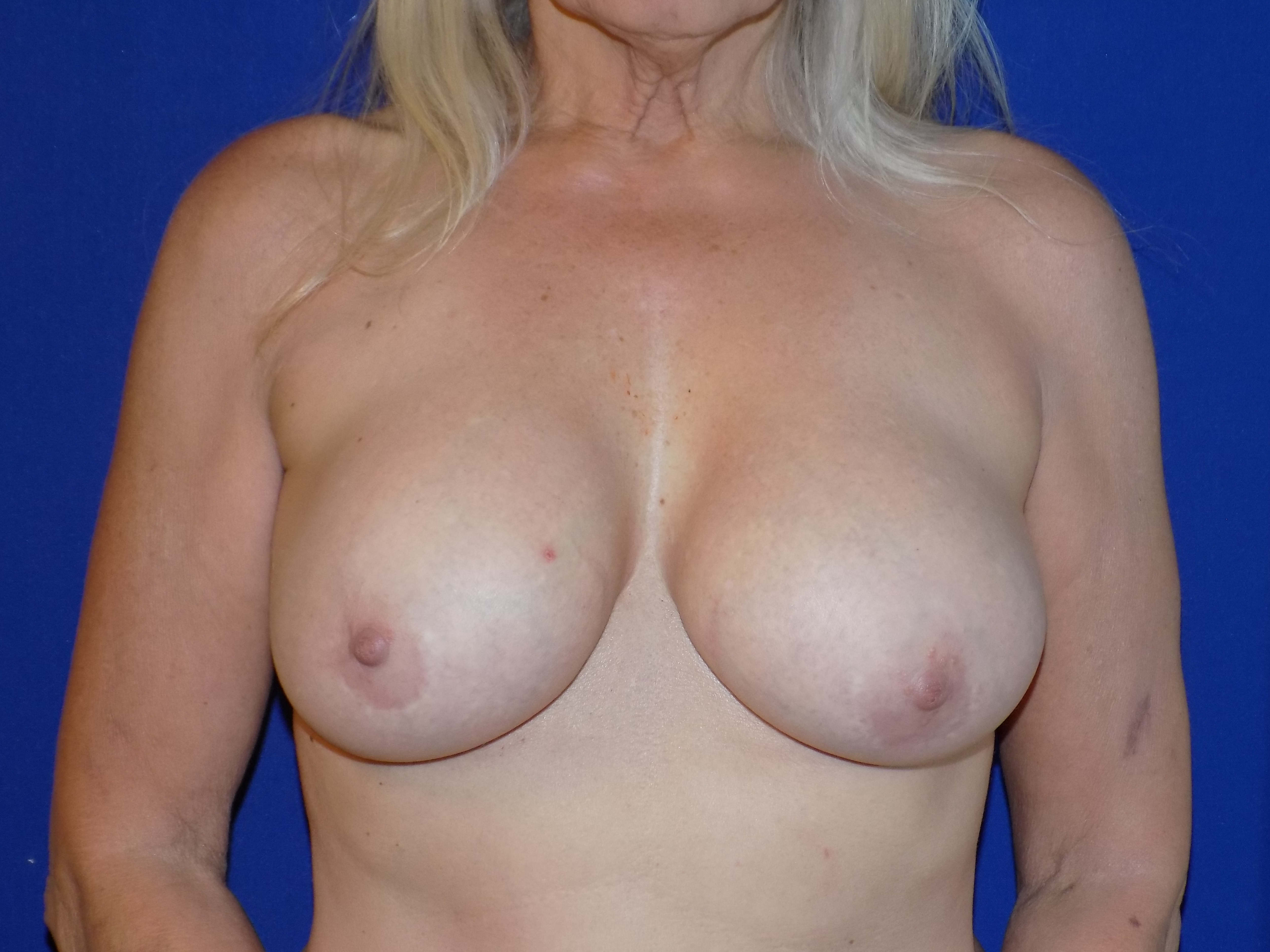 Before-This patient no longer wanter breast implants. Breast Implant removal and breast lift by Dr. Perez.