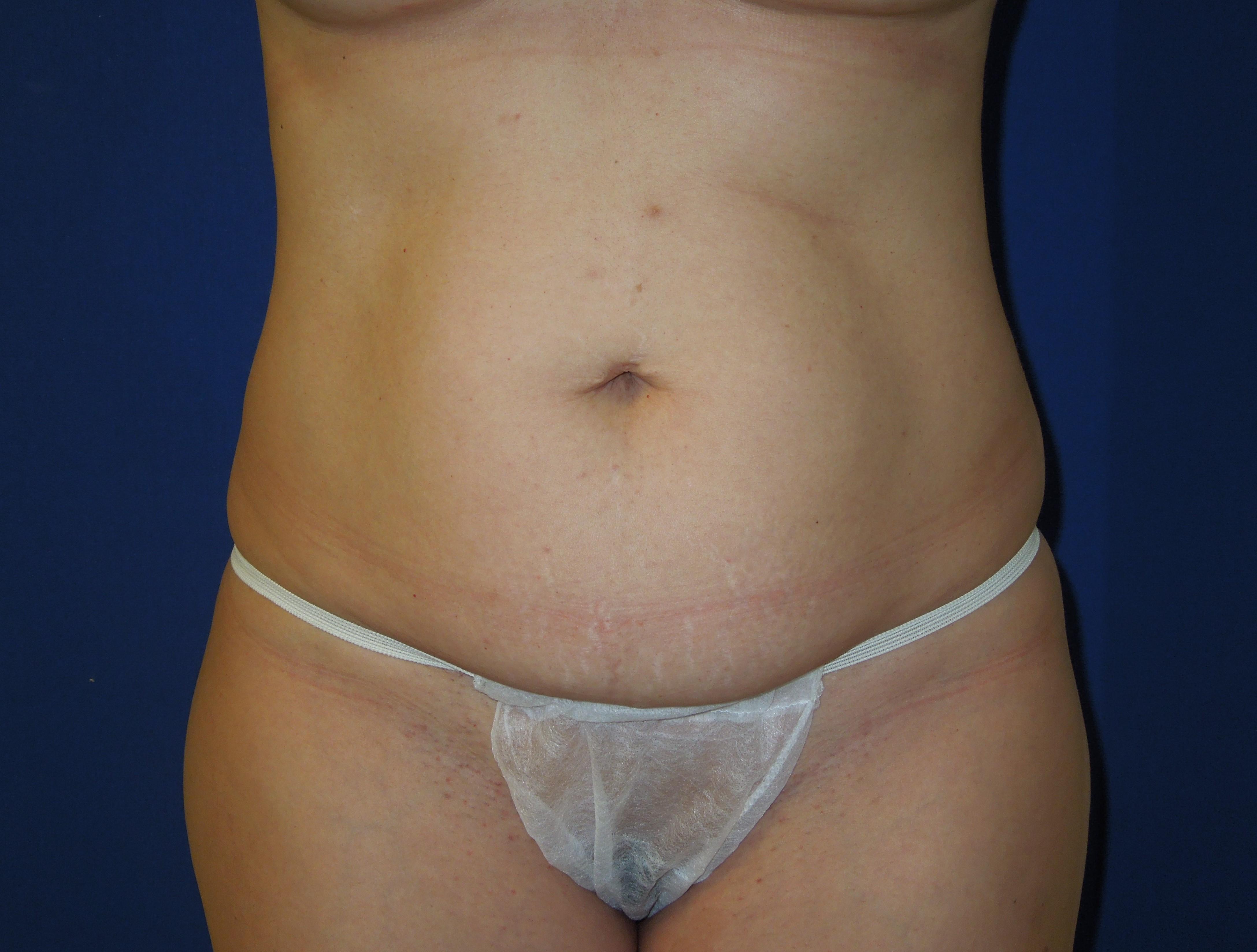 Before-Ultrasonic Lipoplasty